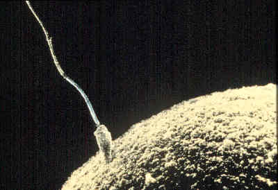 Here sperm microscope count self