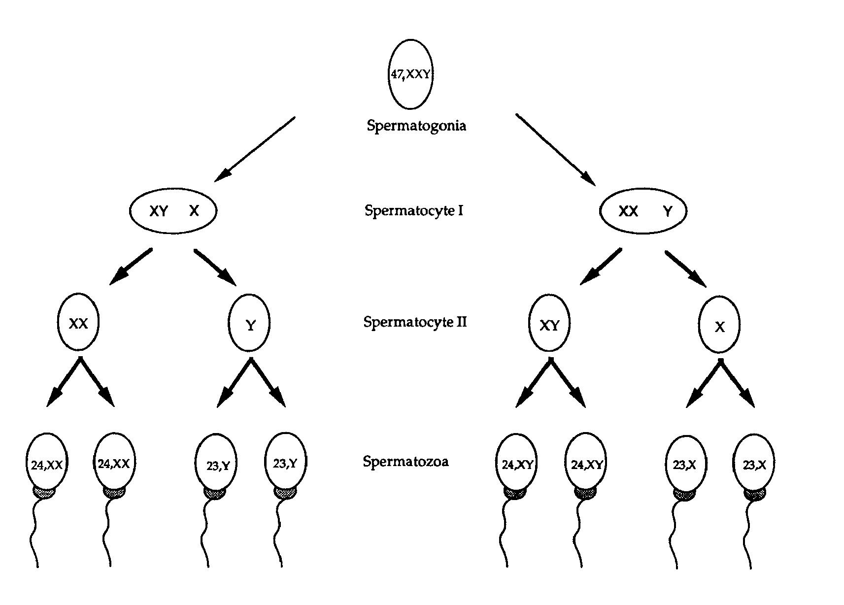 Xyy Syndrome Karyotype Possible XXY meiosis pathways